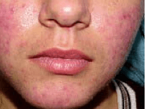 Acne-rosacea-Carbo-animalis